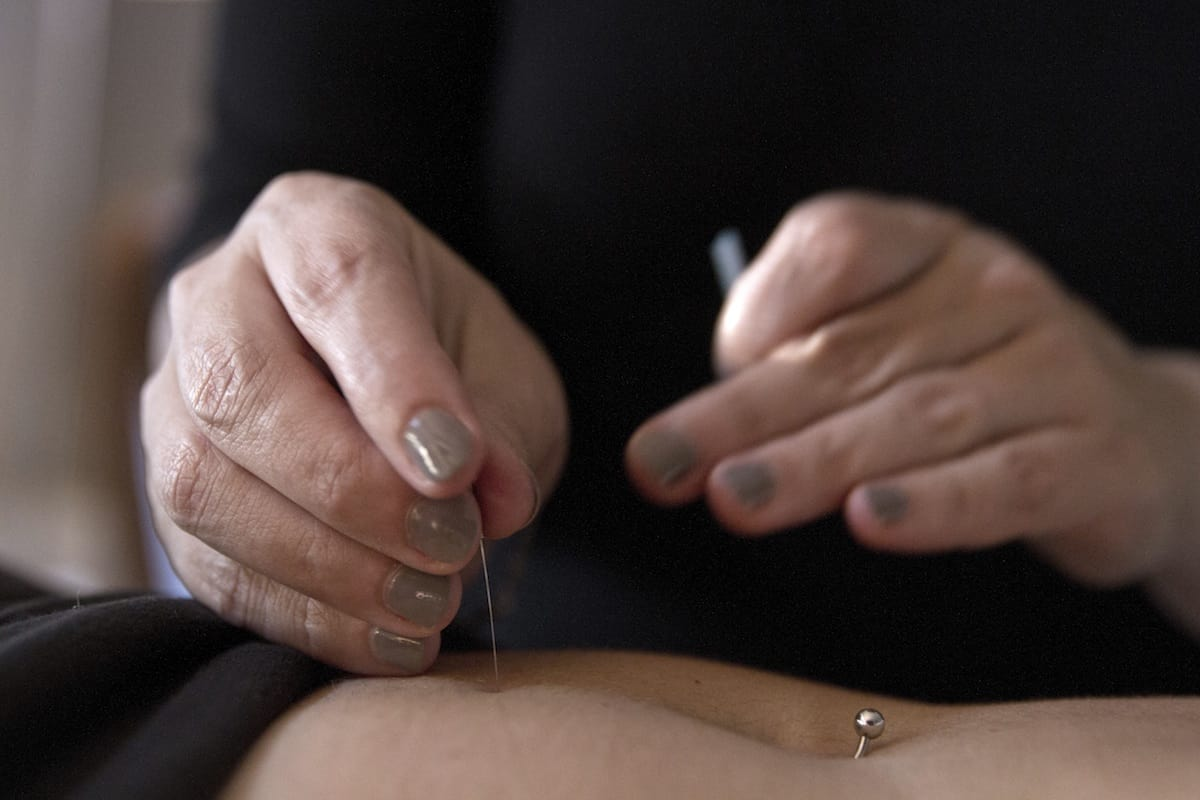 acupuncture-improves-blood-flow