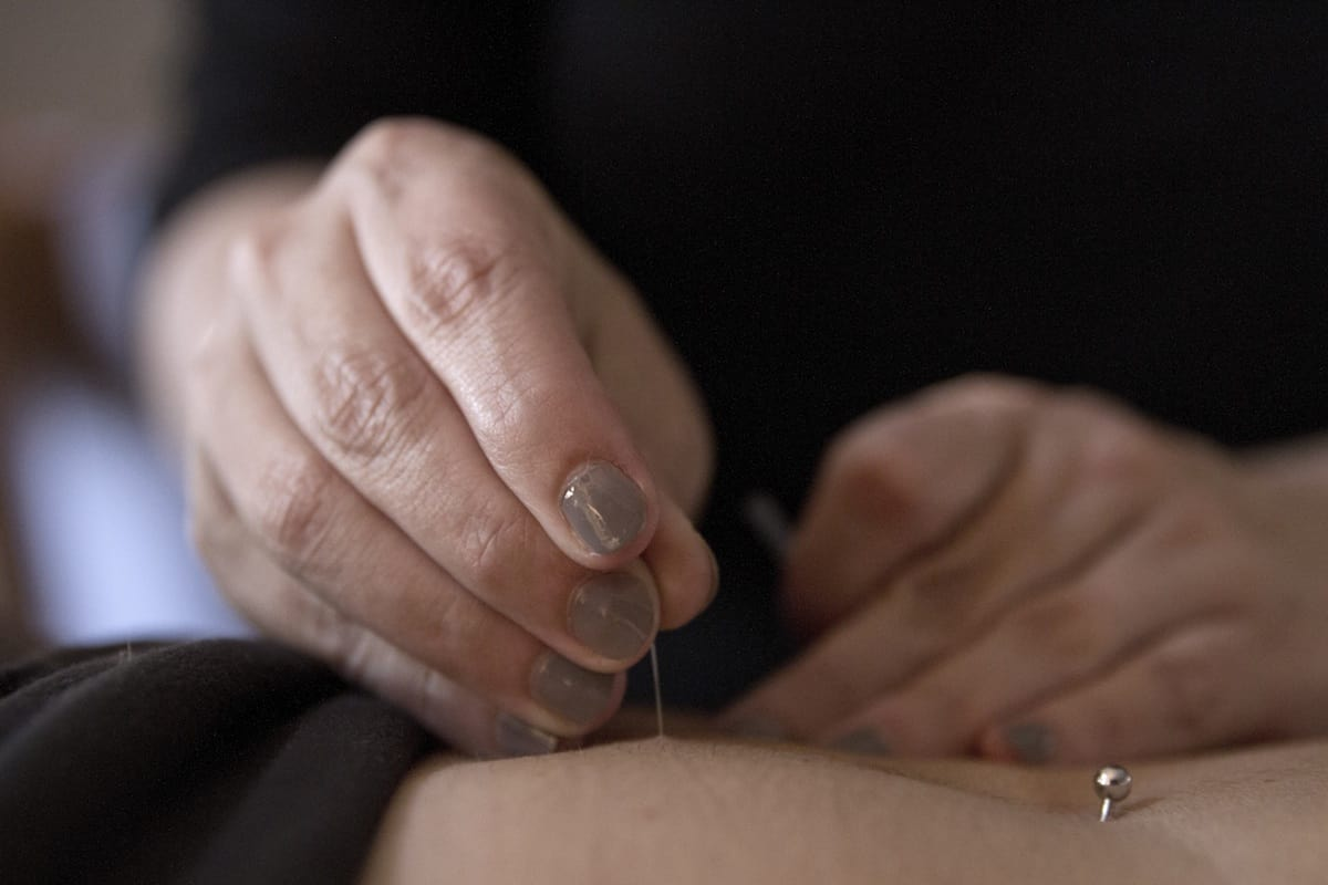 acupuncture-reduces-pain